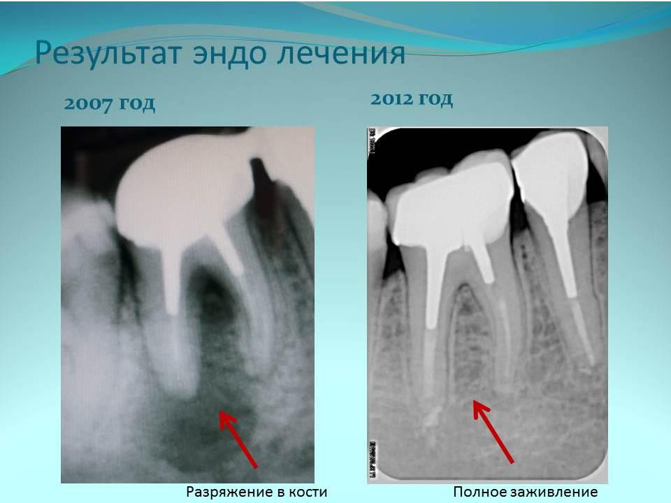 Успешное лечение корневых каналов 46 зуба